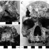 Evidence For maxillary infection In individual G.I.S.15