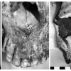 Severe rhinomaxillary infection Is consistent with A diagnosis Of leprosy