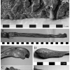 Two individuals from Cemetery H demonstrated cranial And postcranial lesions consistent with A diagnosis Of tuberculosis