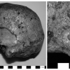 Lesions On The cranial vault Of A male skull, I.S.11